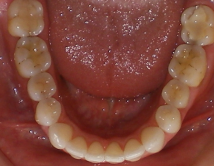 3004Lower-Occlusal-Final_small